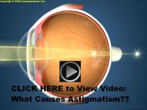 Video - What Causes Astigmatism?