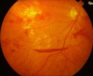 Bleeding And Leaking In Diabetic Eye Disease